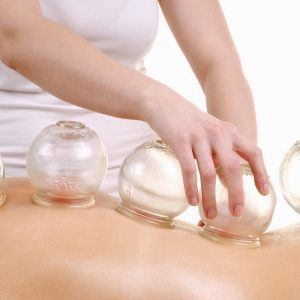 Balance Point Acupuncture | Cupping | Corvallis, Oregon